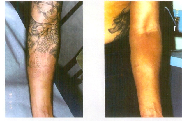 Laser Tattoo Removal | Crystal Lume Medical Spa of Frederick, MD